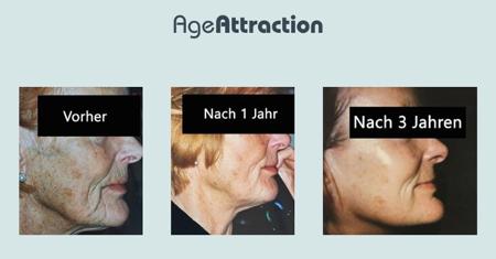 előtte-utána fotó age attraction kezelés